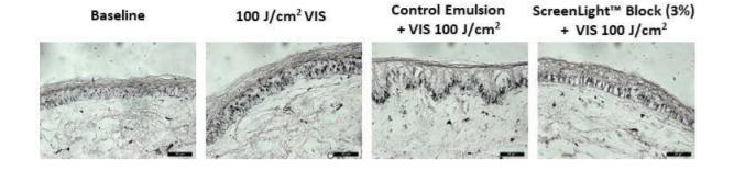 Lonza ScreenLight Block Efficacy test-Skin Pigmentation - 1