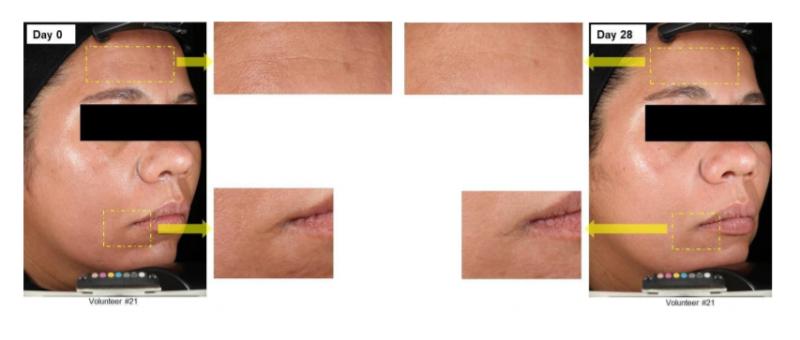 Lonza ScreenLight Block Efficacy Test-Effects of ScreenLight Block on Skin In Vivo - 2